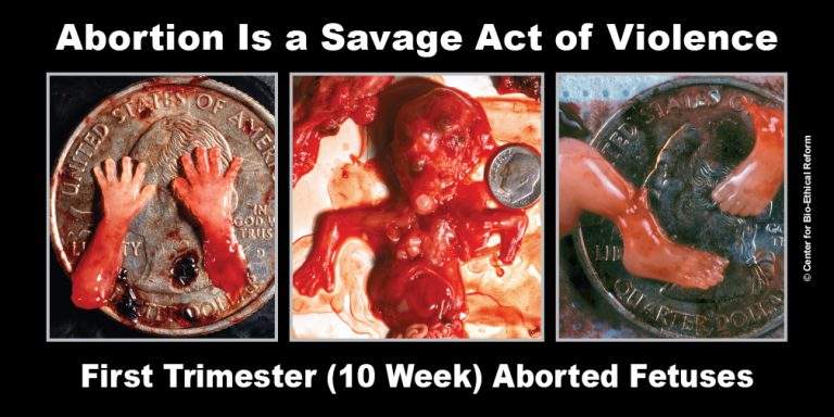 abortion32